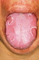 kandida jezik