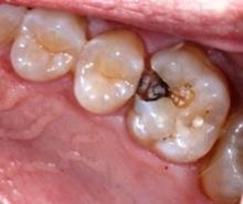 karijes izmedju zuba