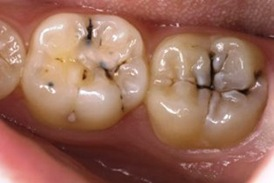 karijes molara