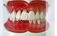 parodontopatija zdravo-obolelo